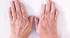 Rheumatoid Arthritis article: Arthritis in Young People