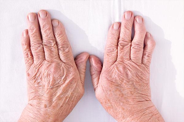 Rheumatoid Arthritis article: RA and Joint Deformity