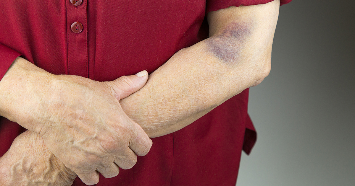 Rheumatoid Arthritis Bruising How To Cover And Care For A