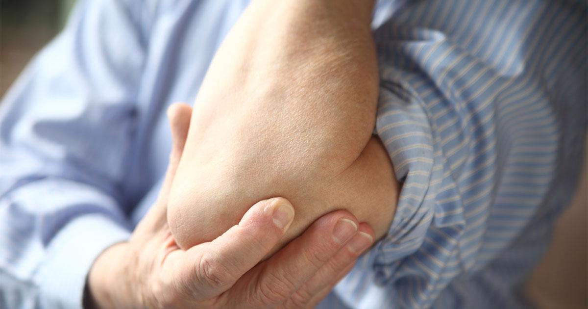 Rheumatoid Arthritis article: RA Nodules